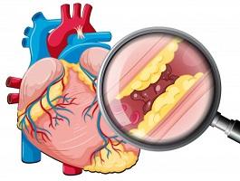 Inima sub lupa colesterol